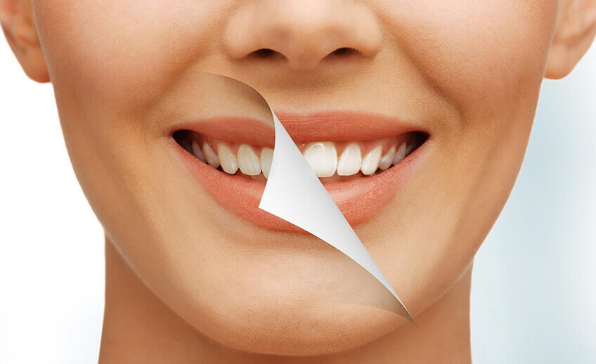 Cosmetic Dentistry Service Newmarket