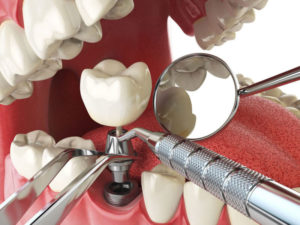 Free Consult Dental Implants Near me