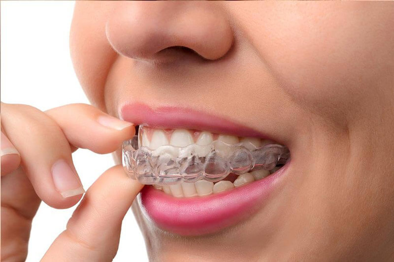 invisalign aligner orthodontics Newmarket Deal.