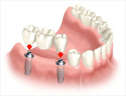 multiple missing teeth with fixed implant-bridge