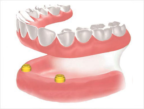 removable implant prostheses Over-dentures